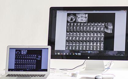 Chirurgia orale a scopo implantare e parodontologia